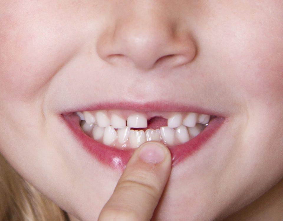 Dentist Bulleen