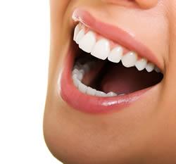 bleached-teeth