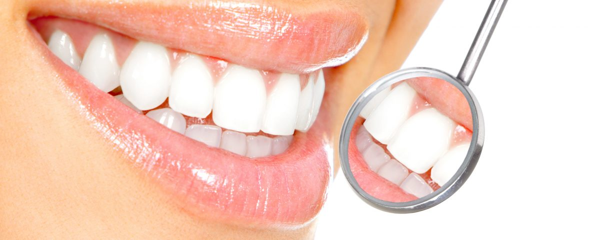 Teeth Whitening Bulleen