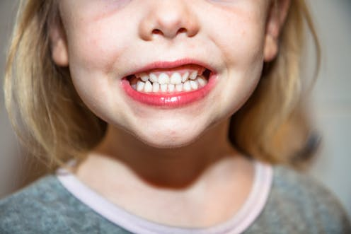 Children have different dental needs than adults-linco