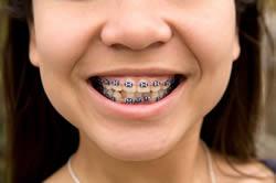 braces-treatment